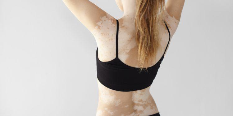 Rückenansicht einer Frau mit Weißfleckenkrankheit.