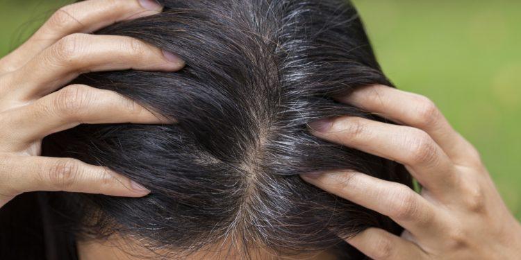 Frau zeigt ihren Haaransatz