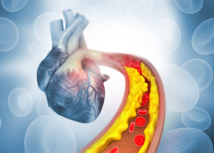 Den Begriff Cholesterin kennen die meisten Personen, aber wissen Sie auch genau, was sich dahinter verbirgt? (Bild: Rasi/stock.adobe.com)