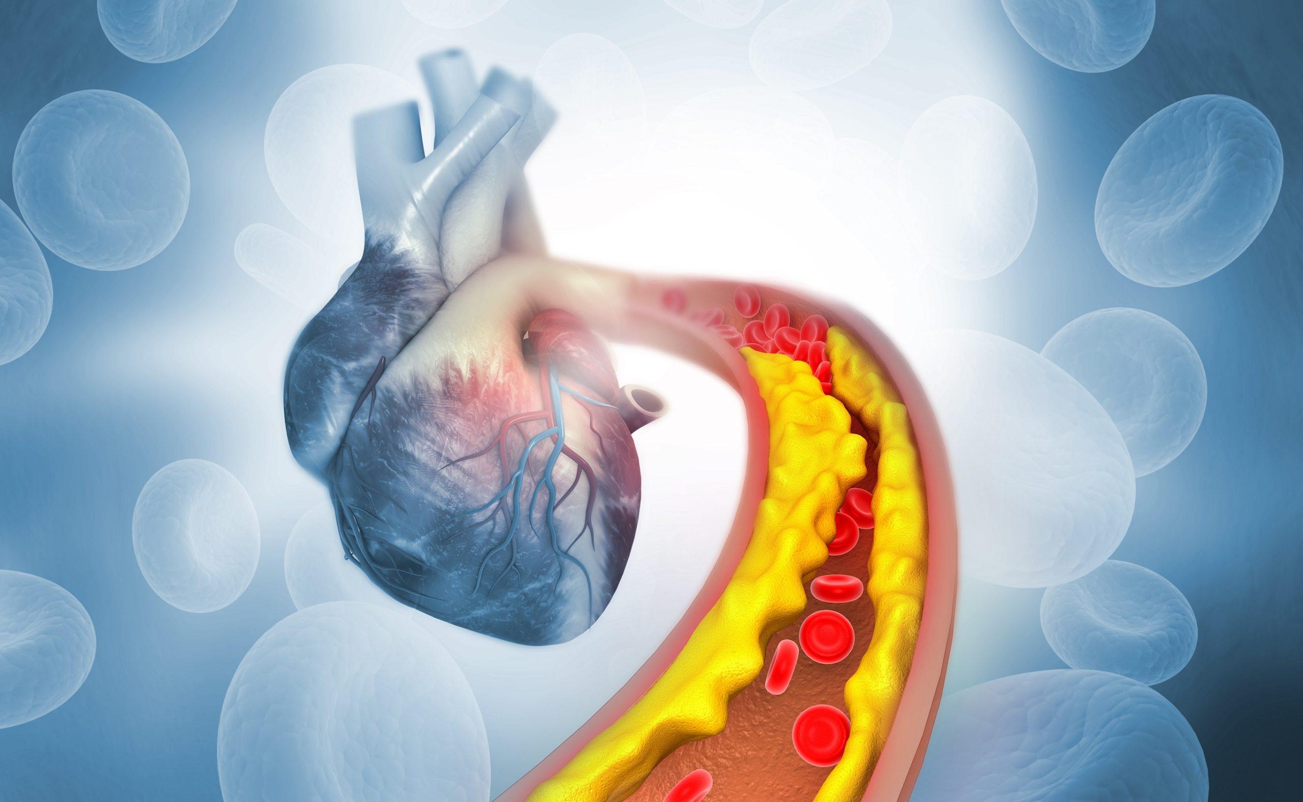 Gutes-und-schlechtes-Cholesterin-Das-sind-die-Unterschiede