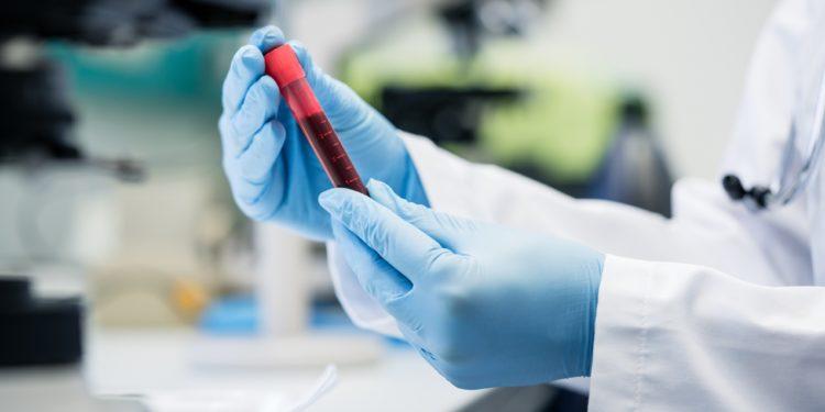 Wissenschaftler mit blauen Handschuhen hält im Labor Bluttest in der Hand