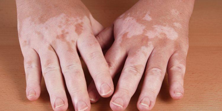 Hände mit großflächigen weißen Flecken auf der Haut.