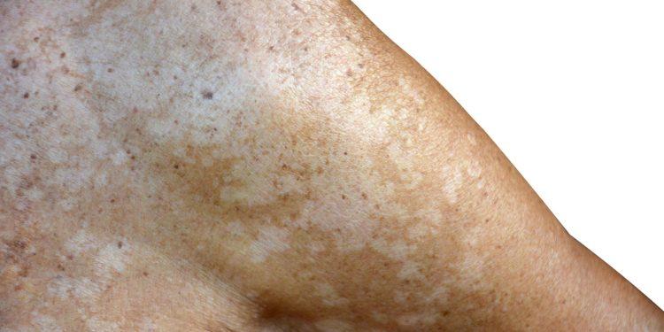 Schulter und Oberarm mit weißen Hautflecken durch eine Kleieflechte.