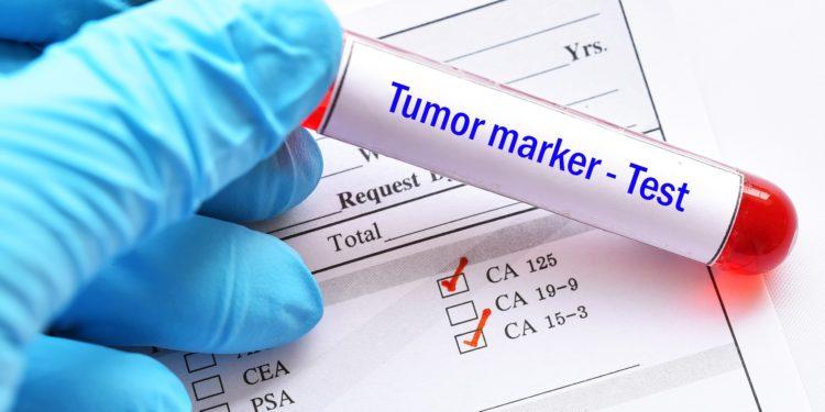 Tumormarkertest, Ampulle und Formular