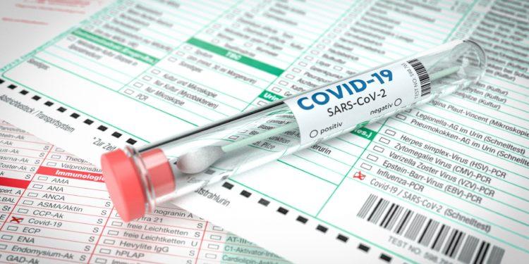 COVID-19-Abstrich-Teströhrchen auf Testformular