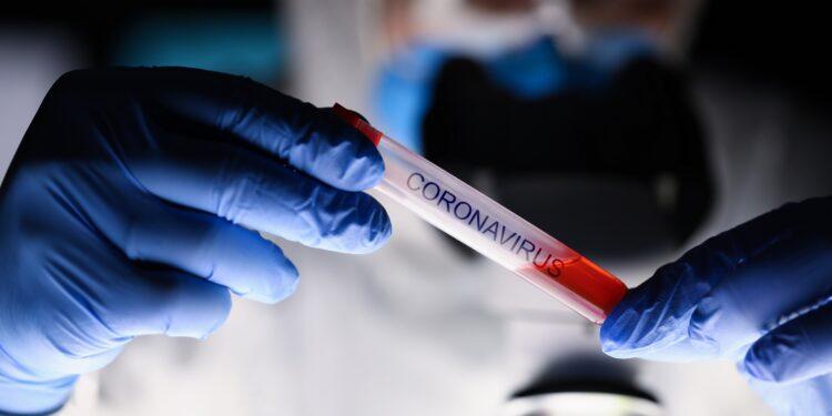 Nahaufnahme von zwei Händen, die ein Laborprobenröhrchen mit Blutplasma halten.