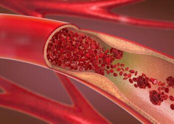 3D-Darstellung einer verengten und blockierten Arterie