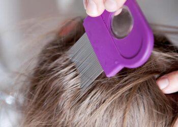 Ein spezieller Läusekamm wird durch die Haare einer Person gestrichen.