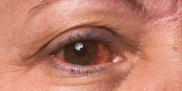 Nahaufnahme eines Auges einer Frau mit Bindehautentzündung