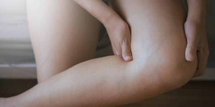 Krampfadern an Beinen einer Frau