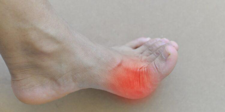 Nackter Fuß mit rötlicher Kennzeichnung am Grundgelenk des großen Zehs
