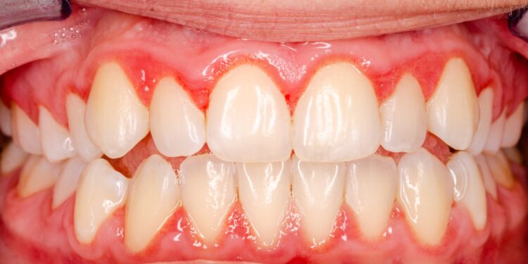 Zähne mit Zahnfleisch und Zahnfleischentzündung in Nahaufnahme.