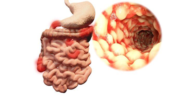 Darstellung eines Darms mit chronisch-entzündlicher Darmerkrankung.