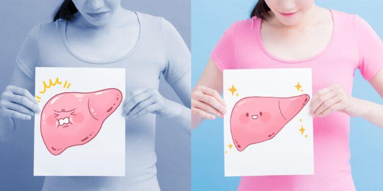 Eine Frau hält auf der linken Seite eine Zeichnung mit einer Fettleber und auf der rechten Seite eine Zeichnung mit einer gesunden Leber in der Hand.