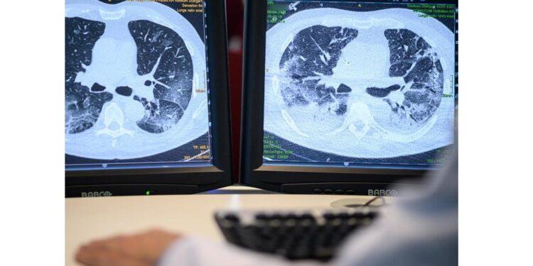 Zwei Monitore zeigen Abbildungen einer Lunge aus bildgebenden Verfahren.