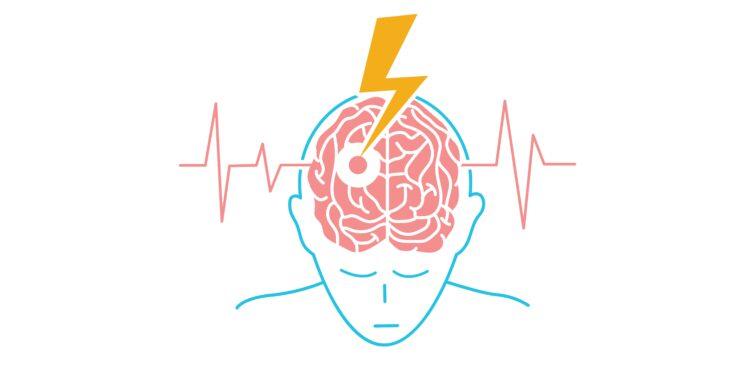 Eine grafische Darstellung einer Person, die einen Schlaganfall erleidet.