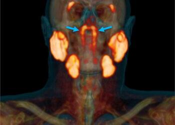 Ein Scan eines Kopfes, welches mittels dem Bildgebungsverfahren PSMA PET/CT aufgenommen wurde.