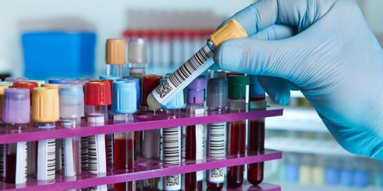 Verschiedene Blutproben im Labor.