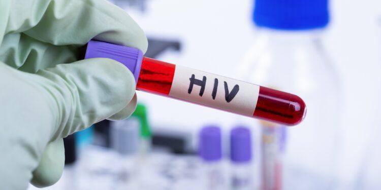 Blutprobe mit HIV in einem Labor.