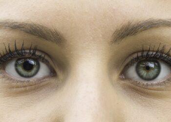 Das Augenpaar einer Frau. Die linke Pupille ist erweitert und die rechte zusammengezogen.