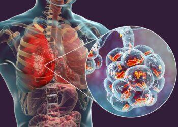 3D-Illustration einer bakteriellen Lungenentzündung