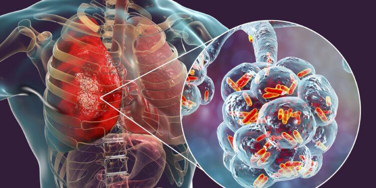 3D-Darstellung einer bakteriellen Lungenentzündung