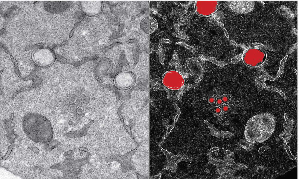Transmissionselektronenmikroskopie von Zellen, die von dem Coronavirus SARS-CoV-2 infiziert wurden.