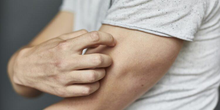 Mann kratzt sich am Oberarm