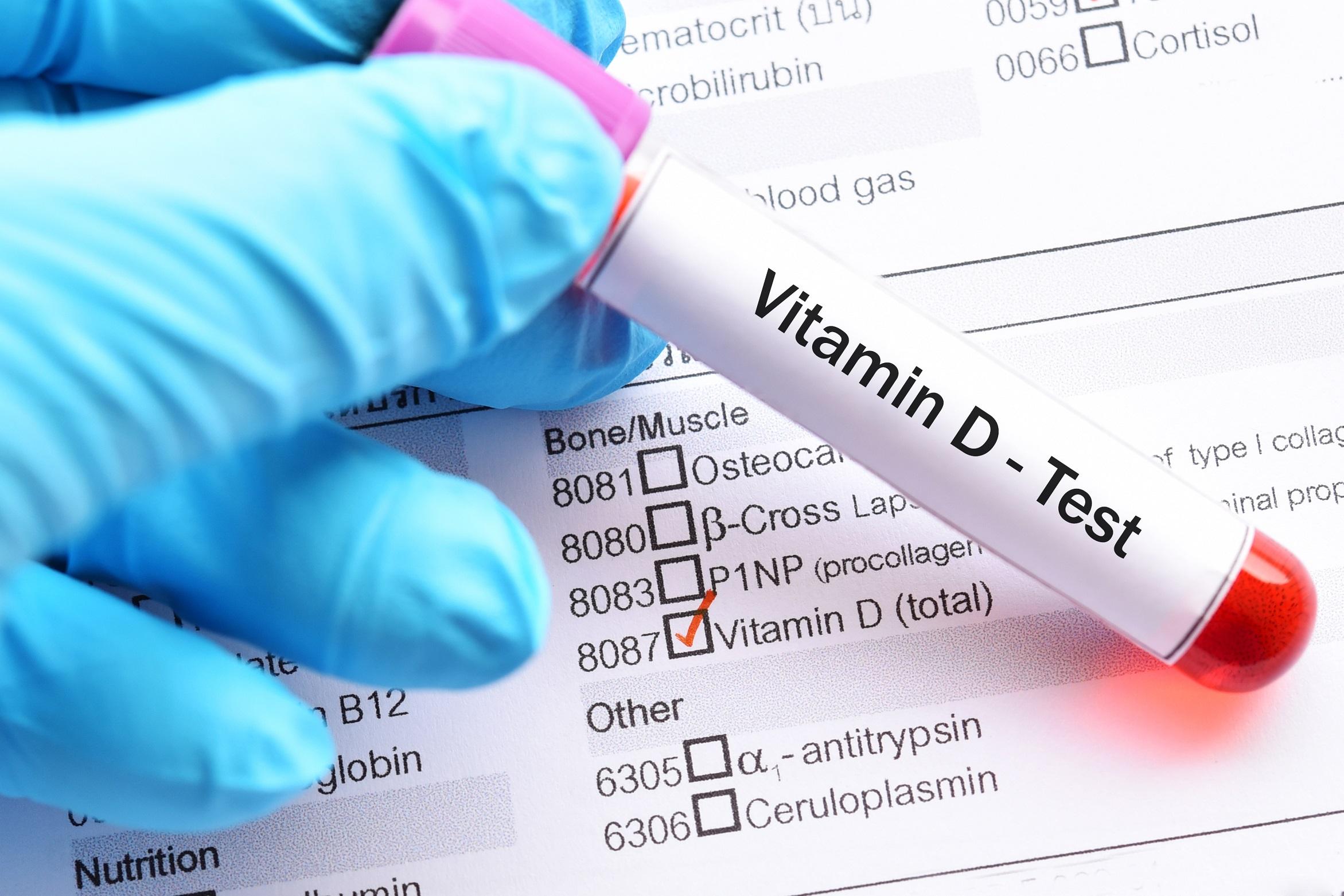 Vitamin D Corona Studie