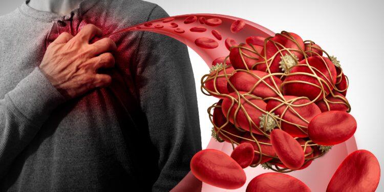 Eine grafische Darstellung eines Blutgerinnsels und einem Mann, der sich an das Herz fasst.