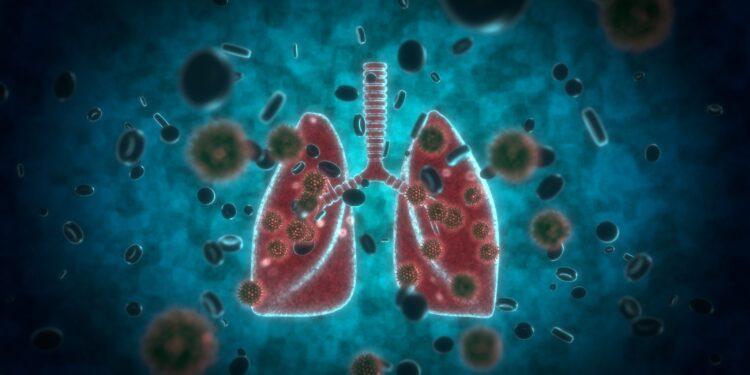 Eine grafische Darstellung einer Lunge, die von Krankheitserregern umgeben ist.