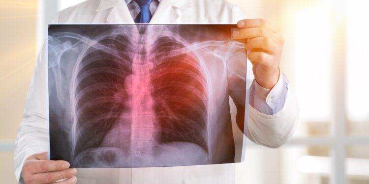 Ein Arzt sieht sich eine Röntgenaufnahme der Lunge an.