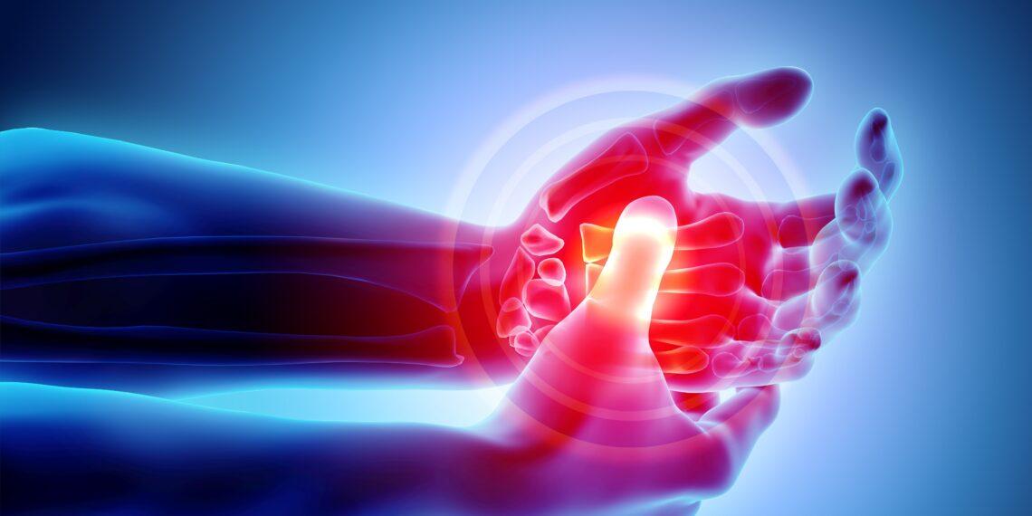 Eine grafische Darstellung einer schmerzenden Hand.