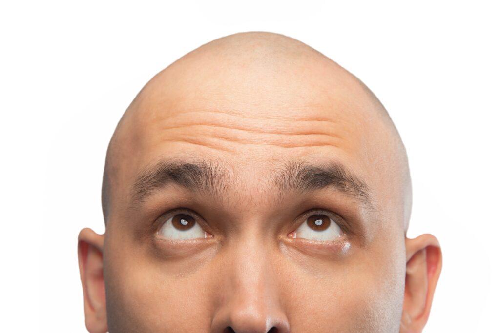 Männer glatze bilder mit GLATZE BEI