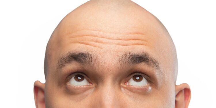 Mann schaut auf seine Glatze.