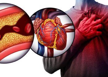 LDL-Cholesterin kann die Gefäße verstopfen. Ein neuer und bereits zugelassener Wirkstoff halbiert den LDL-Spiegel mit nur zwei Injektionen pro Jahr. (Bild: freshidea/stock.adobe.com)