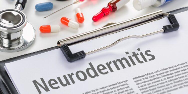 Klemmbrett mit einem Papier auf dem Neurodermitis steht neben verschiedenen Medikamenten