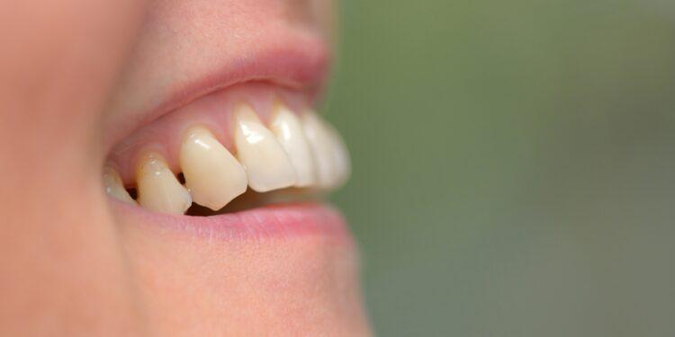 Zahnfleisch einer Person mit Parodontitis.
