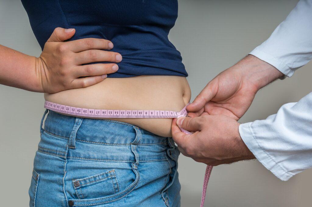 Arzt misst bei übergewichtiger Frau den Bauchumfang