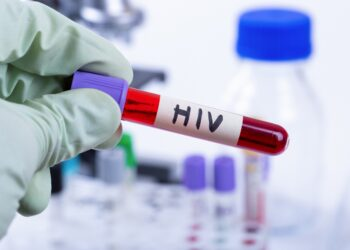 Ampulle mit Blutprobe mit HIV.