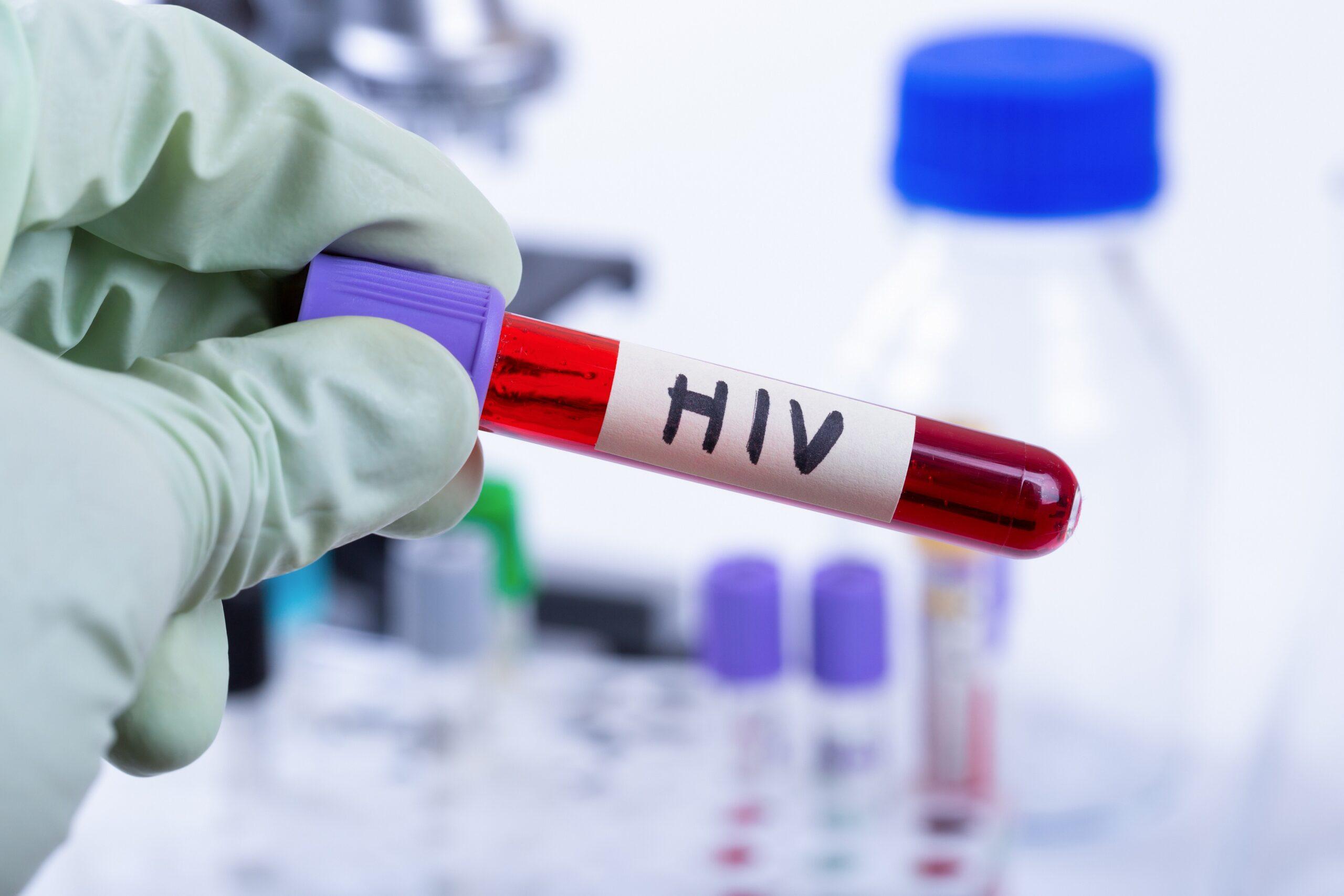 HIV: Möglicher Schlüssel zur Heilung identifiziert - Heilpraxisnet.de