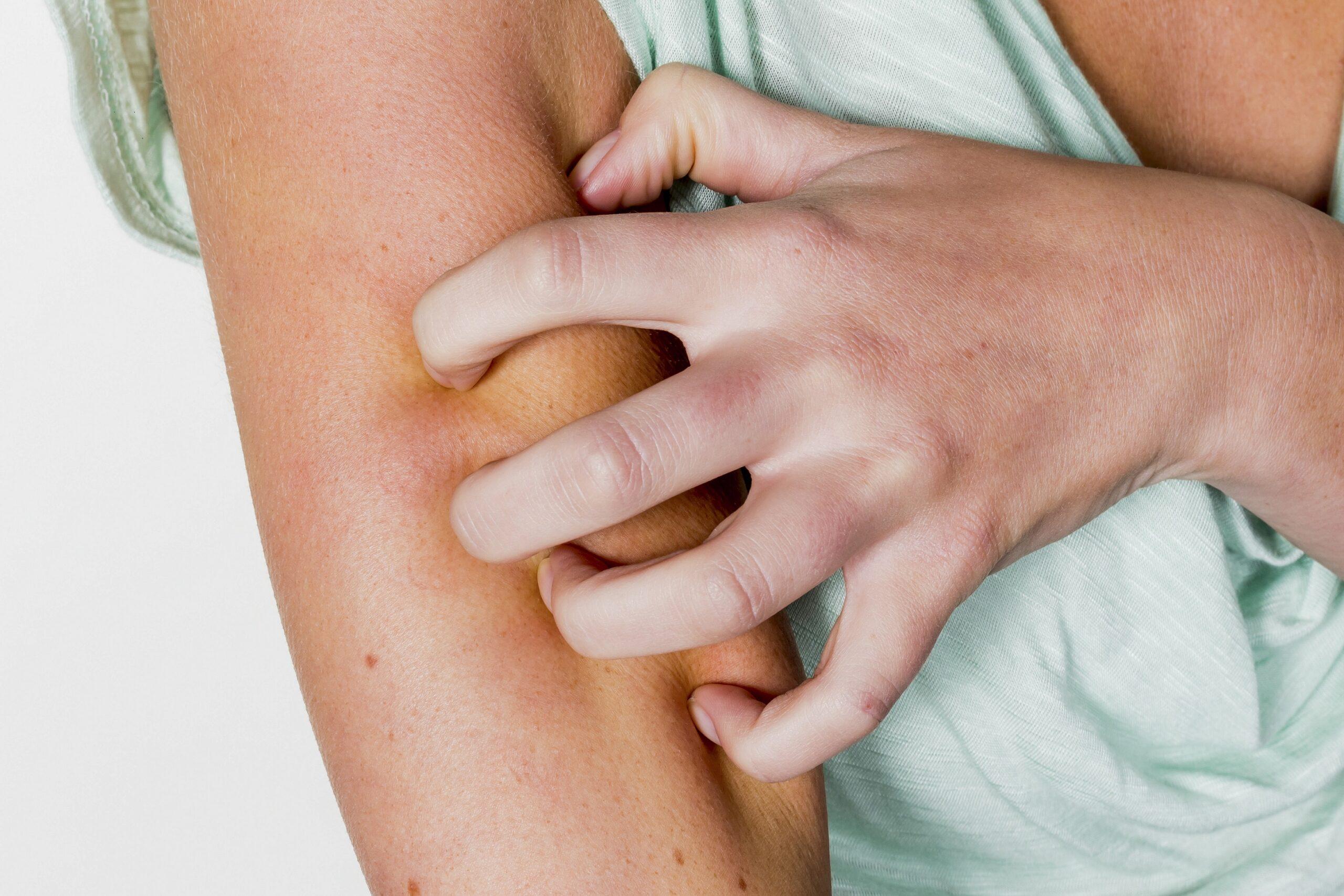 Neurodermitis: Neuartige Therapeutika als vielversprechende Behandlungsmöglichkeit - Heilpraxisnet.de
