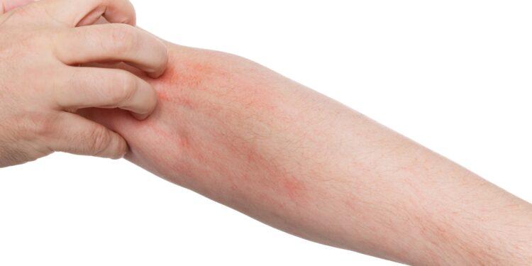 Mann mit Hautausschlag kratzt sich am Arm