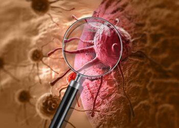 Grafische Darstellung einer Lupe, die eine Krebszelle vergrößert.