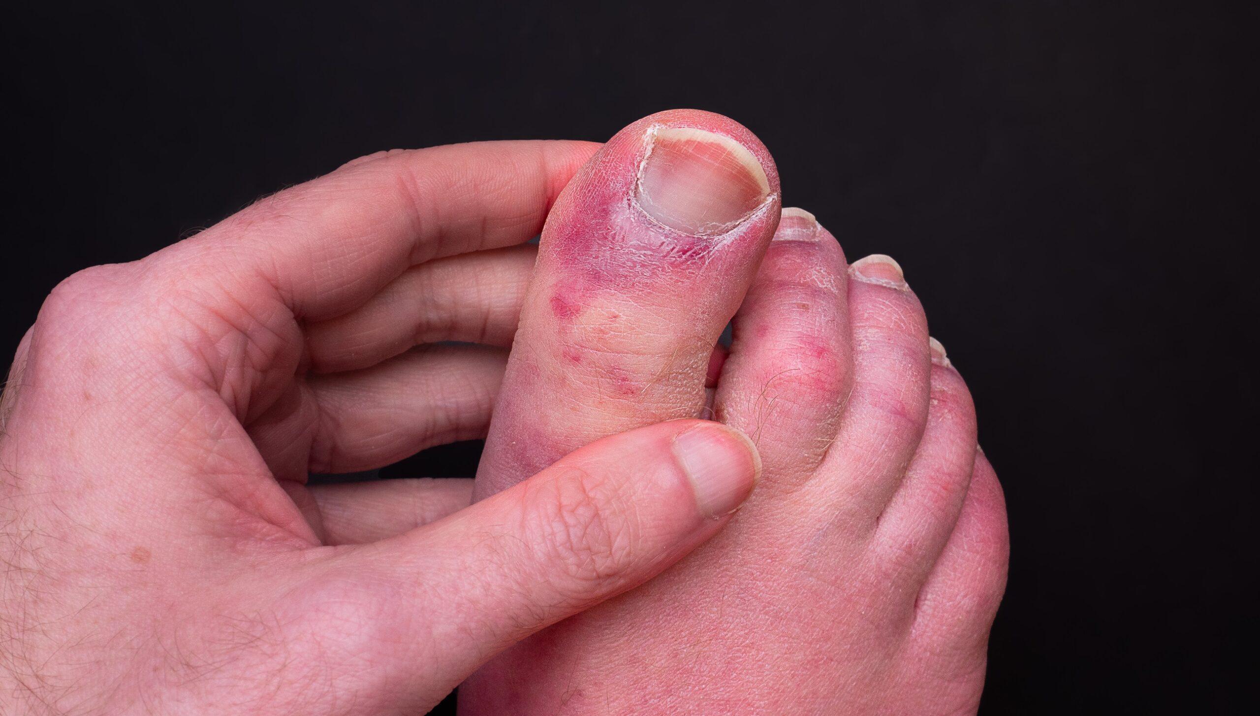 Zehen rote Brennende Füße