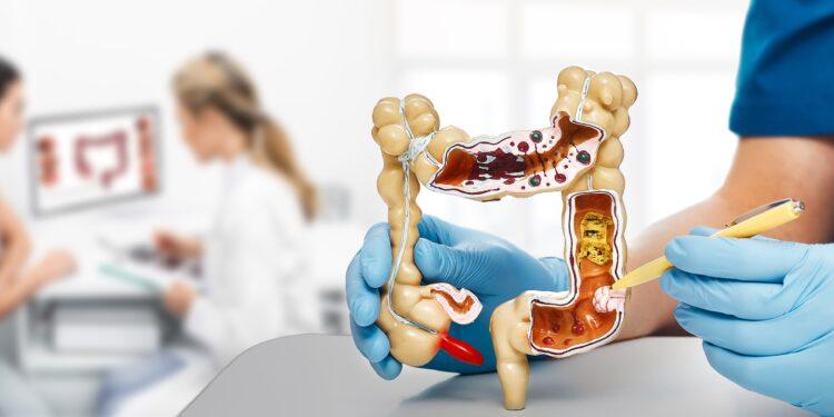 Ein Arzt zeigt einen Darmtumor in einem Modell.