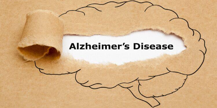 """Gezeichnetes Gehirn, in der Mitte aufgerissen mit der Inschrift """"Alzheimer´s Disease"""""""
