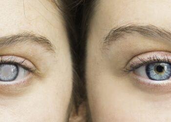 Die Einnahme von hormonellen Verhütungsmitteln ist mit einem erhöhten Risiko für Glaukome verbunden. (Bild: Alessandro Grandini/stock.adobe.com)