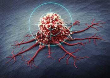 Eine neuartige Methode zur Behandlung von Knochenkrebs scheint bei betroffenen Personen die Metastasierung effektiv zu reduzieren. (Bild: peterschreiber.media/stock.adobe.com)