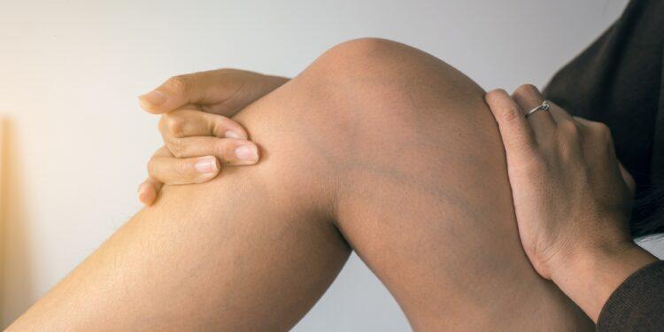 Frau hält ihre Hände an ihrem Bein mit Krampfadern